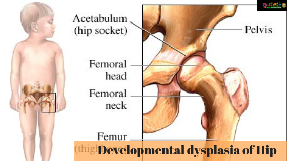 Developmental Dysplasia of Hip
